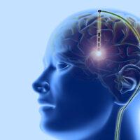 """Ученые разработали методику """"включения/выключения"""" сознания путем электростимуляции мозга"""