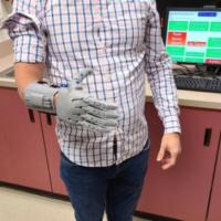 Молодые ученые из США создали протез с открытым исходным кодом. Его может напечатать любой